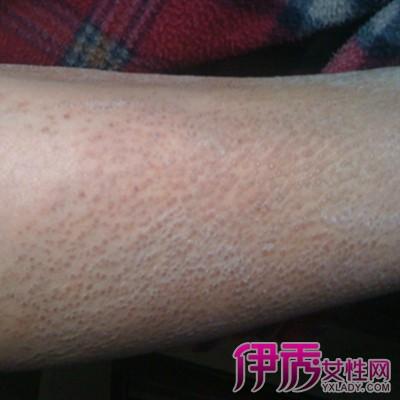 皮肤病怎么治疗 如何进行诊断和检查呢