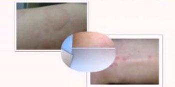 夏季荨麻疹最常见 怎么预防?