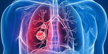 肺癌患者做什么检查 常见的六大检查方法