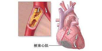 心肌梗塞的发病原因有哪些 怎么预防